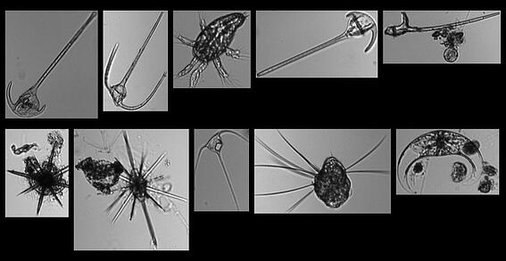Plankton imaged by FlowCam at University College Dublin, Integrative Biology Laboratory