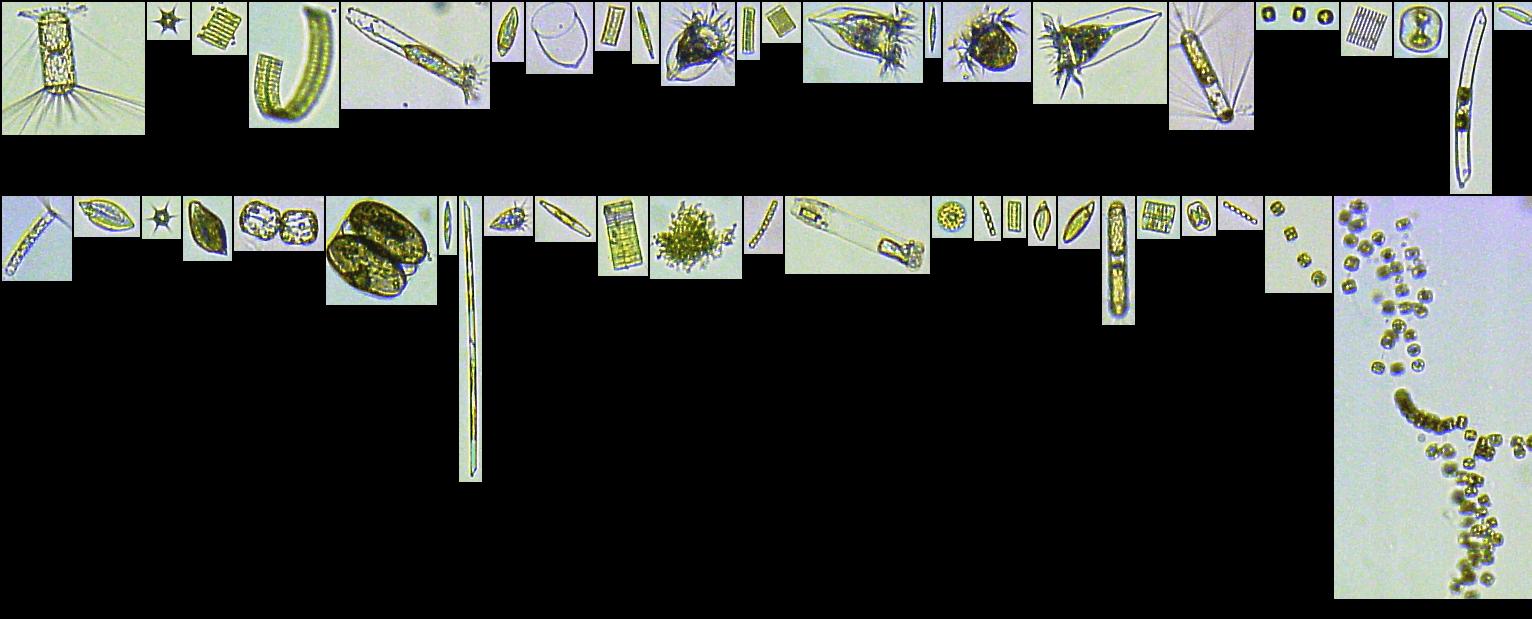 FlowCam Southern Ocean Plankton WHOI_Antarctic_SGallagher_10X 2