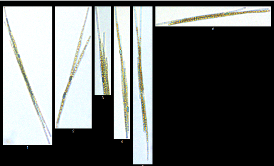 aphanizomenon-606019-edited-058716-edited.png