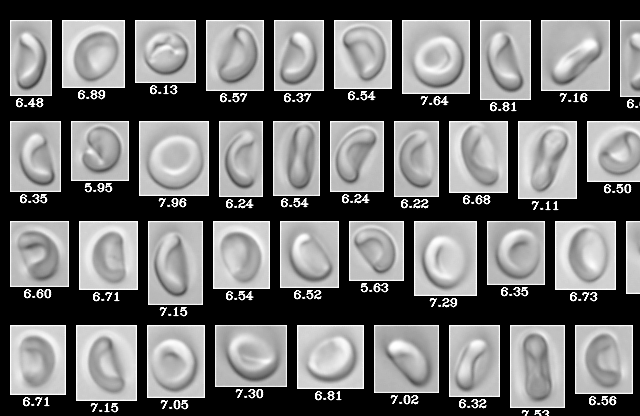 blood cells imaged by FlowCam Nano
